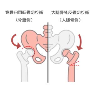 変形性股関節症の手術療法のひとつ、骨切り術の手術方法の違いを示した画像