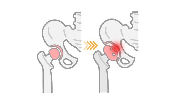 股関節の軟骨がすり減る様子を表した画像
