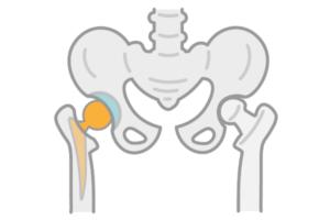 人工股関節を設置した股関節の画像