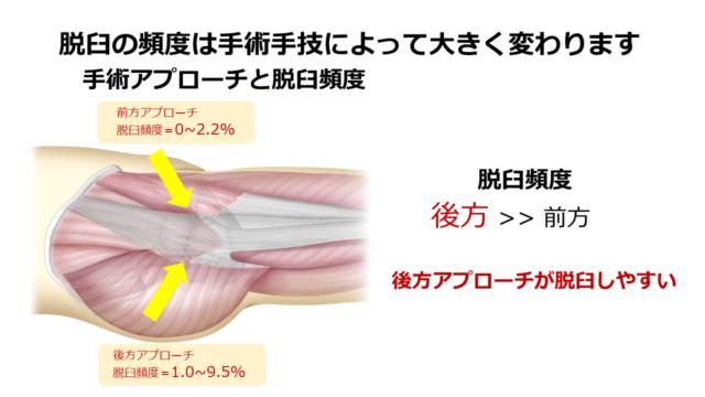 脱臼の頻度は手術手技によって大きく変わります,手術アプローチと脱臼頻度